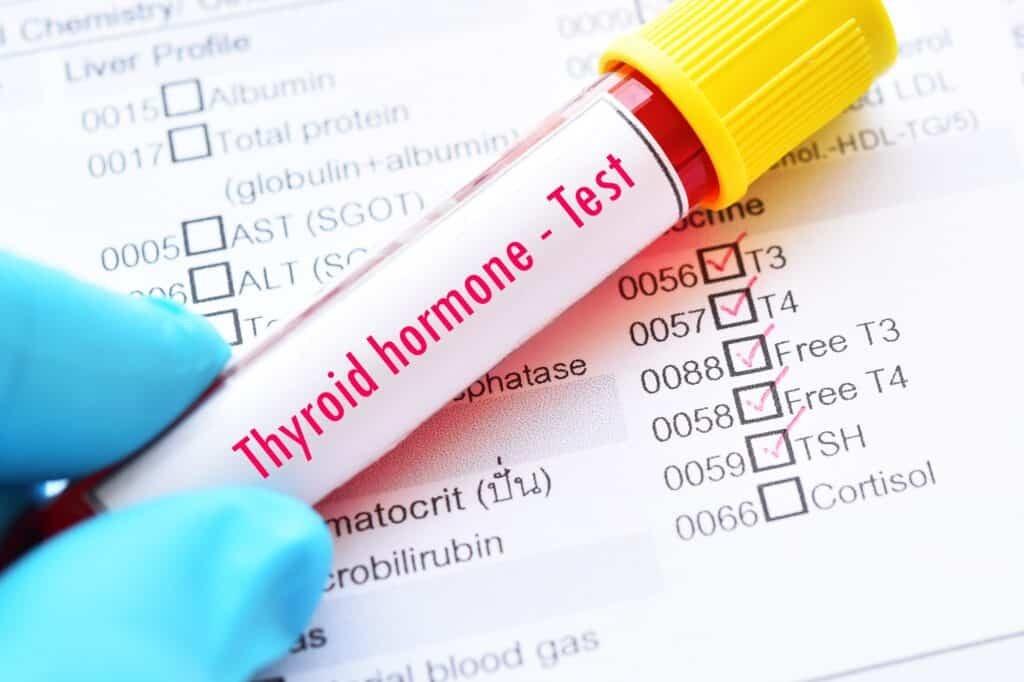 Xét nghiệm hormone giáp trong máu