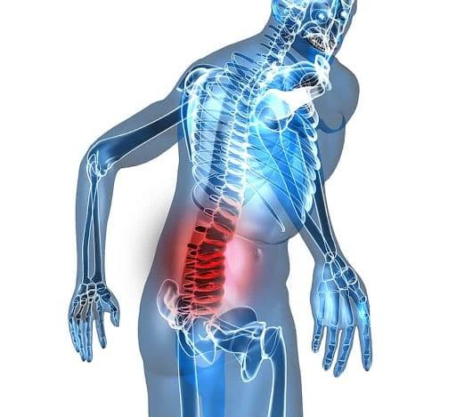 Đau lưng thường do nhiều nguyên nhân khác nhau