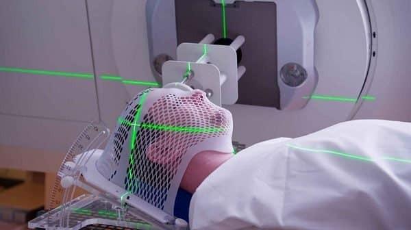 Đối với ung thư vùng đầu mặt cổ, tuyến giáp là vùng dễ bị tổn thương do tia xạ nhất.