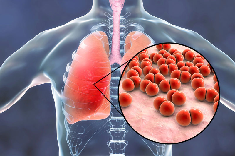 Phế cầu khuẩn gây ra nhiều bệnh lý nghiêm trọng - trong đó có viêm phổi