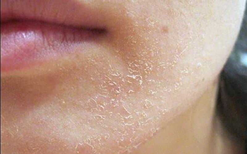 Nguyên nhân gây ngứa da toàn thân? Cách điều trị hiệu quả