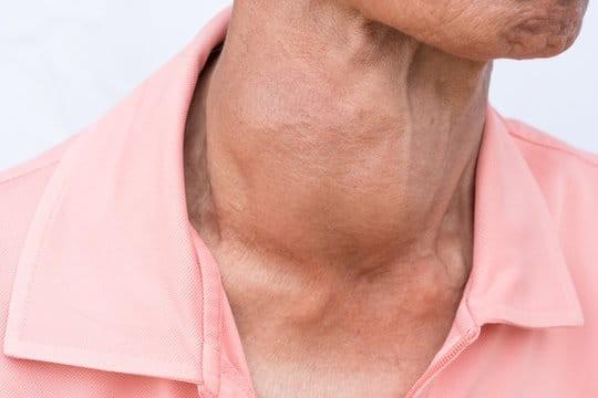 Bệnh giáp Graves là một trong những nguyên nhân thường gặp nhất của bệnh.