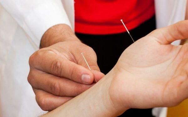 Châm cứu hiệu quả trong điều trị đau cổ tay