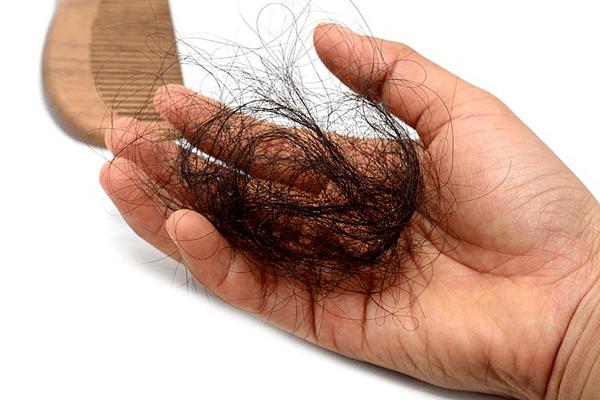 Rụng tóc là một trong những triệu chứng của bệnh.