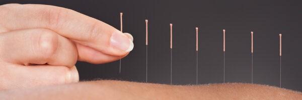 Châm cứu trong điều trị giảm tiết mồ hôi tay
