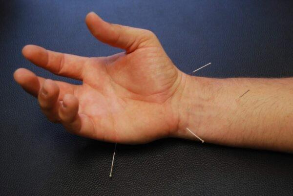 Châm cứu được nghiên cứu trong điều trị hội chứng ống cổ tay