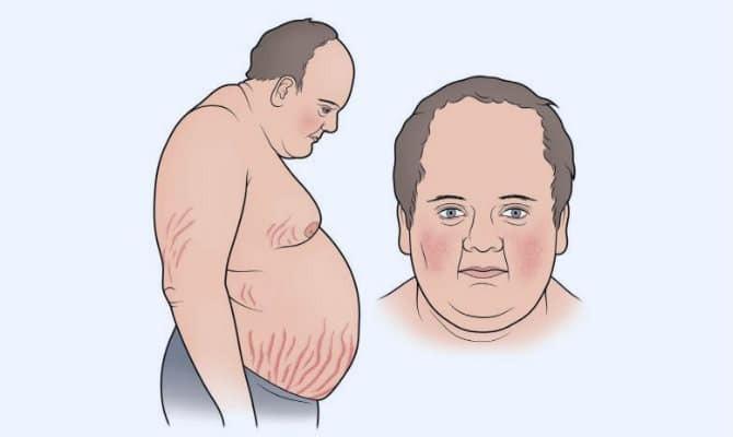 Hình ảnh bệnh nhân hội chứng Cushing