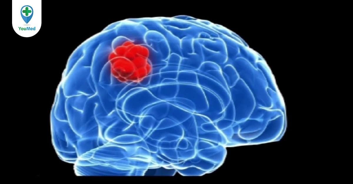 Ung thư não thứ phát