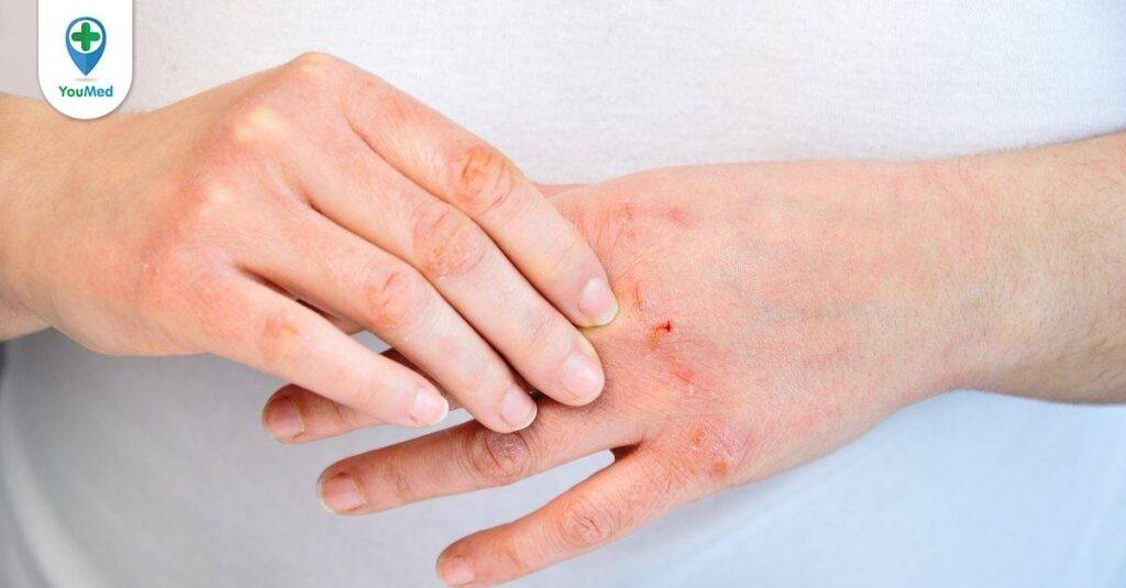Bệnh viêm da cơ địa hay còn gọi là bệnh chàm