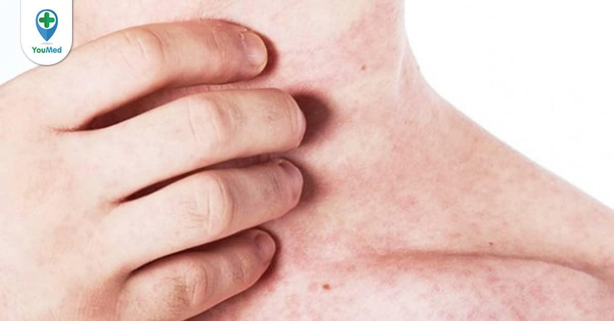 Cách điều trị ngứa ở từng vùng da
