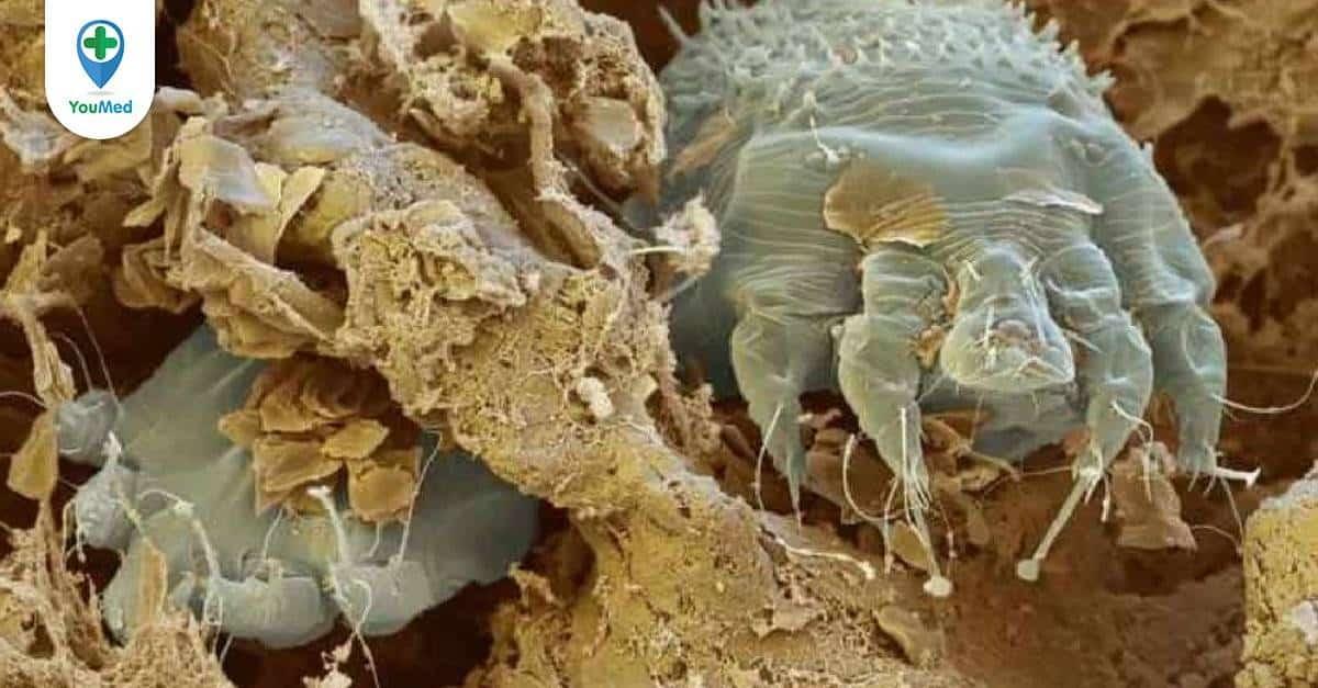 Cái Ghẻ ký sinh trùng gây bệnh