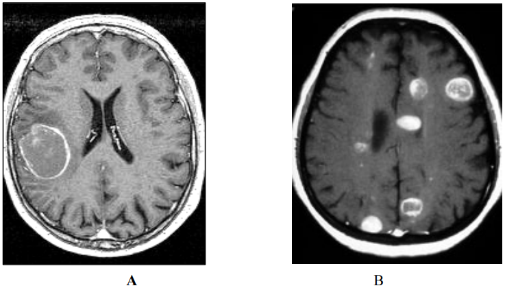 Ung thư não thứ phát là bệnh lý xảy ra khi các tế bào ung thư di căn đến não