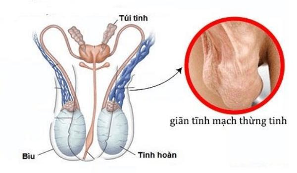Giãn tĩnh mạch thừng tinh là nguyên nhân gây tinh trùng loãng