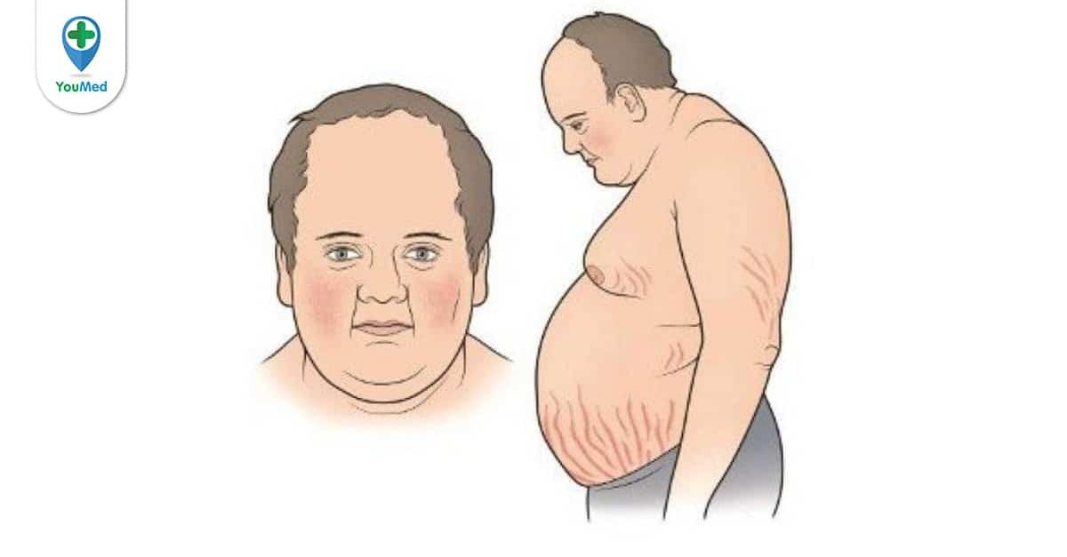 Bệnh Cushing và hội chứng Cushing