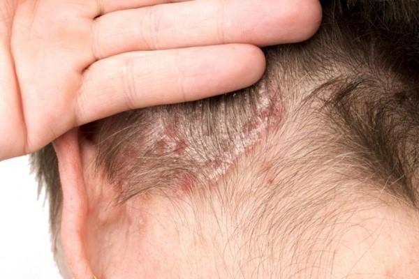 Cách trị dứt điểm ngứa da đầu