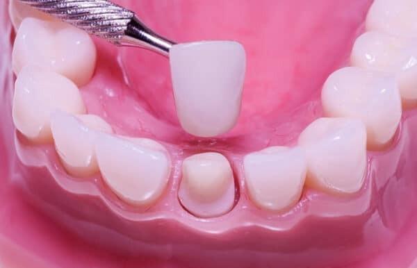 Chi phí bọc răng sứ là không cố định