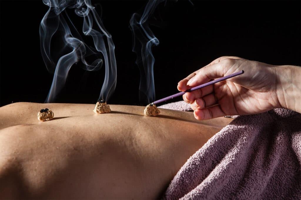 Cứu là dùng sức nóng kích thích vào các huyệt trên da