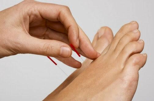 châm cứu bàn chân có nhiều tác dụng