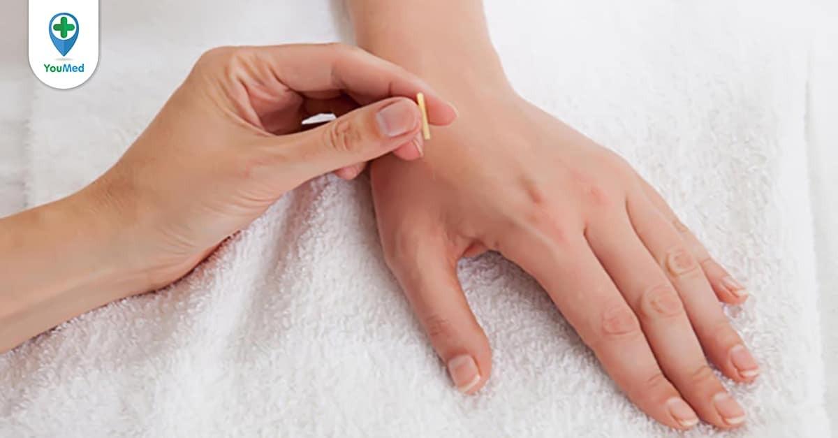 Châm cứu chữa đau cổ tay