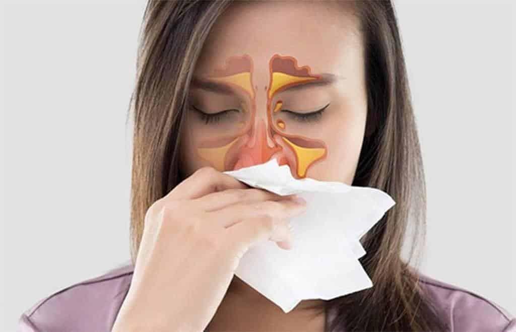 Theo YHCT, có nhiều nguyên nhân dẫn đến viêm xoang