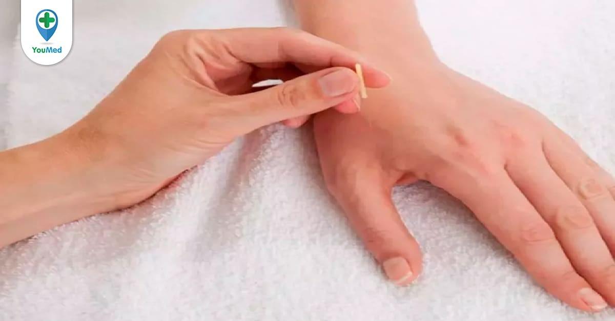 châm cứu điều trị hội chứng ống cổ tay
