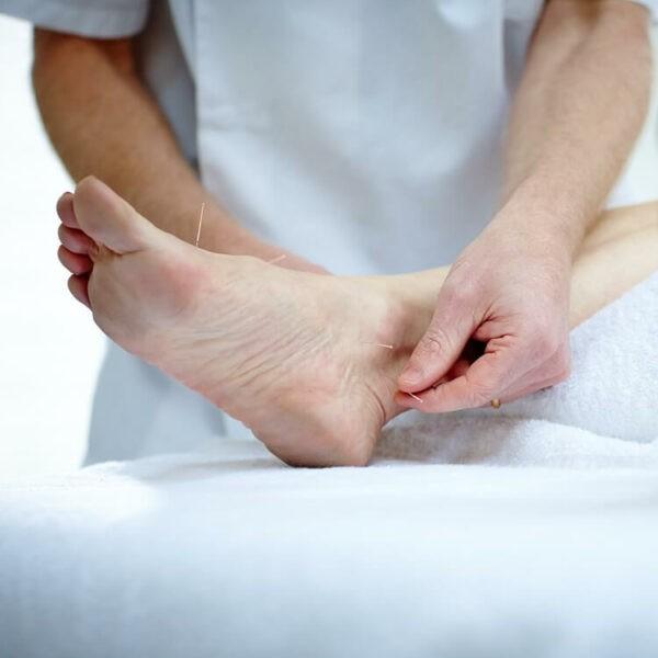 Châm cứu chữa gai gót chân là phương pháp có tác dụng giảm đau hiệu quả.