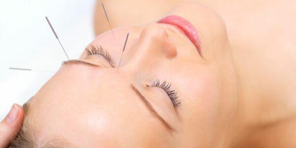 Châm cứu phục hồi sức trẻ của da mặt