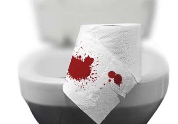 Mức độ đi cầu ra máu tăng dần theo mức độ nặng của bệnh