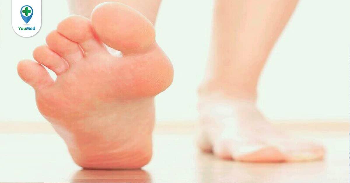 Đổ mồ hôi chân