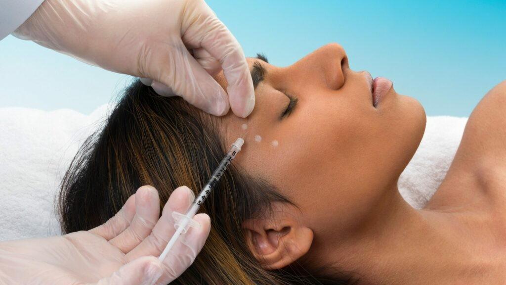 Tiêm botox được công nhận trong điều trị đổ mồ hôi ở mặt