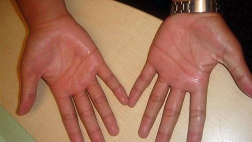 Ra mồ hôi tay chân là hiện tượng thường gặp ở lứa tuổi thanh thiếu niên