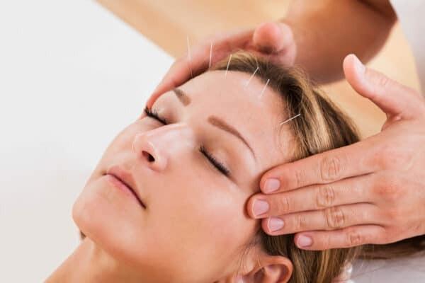 Châm cứu thẫm mỹ kết hợp với massage mặt giúp bảo vệ làn da