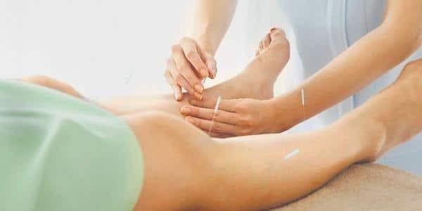 Châm cứu trị giãn tĩnh mạch chi giúp thông kinh lạc, bổ khí huyết,...