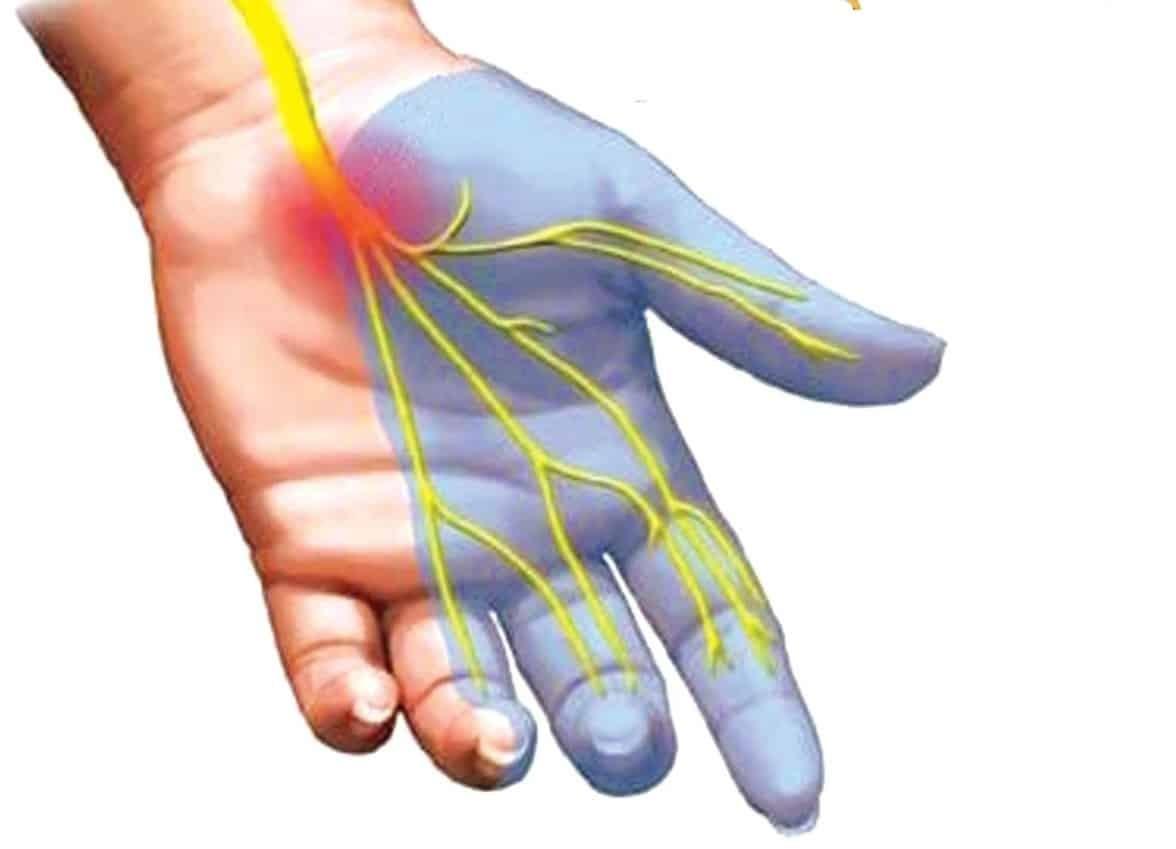 Hội chứng ống cổ tay là bệnh lý thường gặp