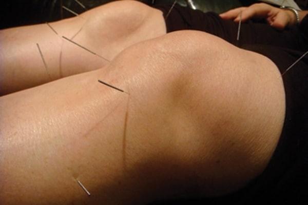 Châm cứu giúp cải thiện các triệu chứng của đau khớp gối