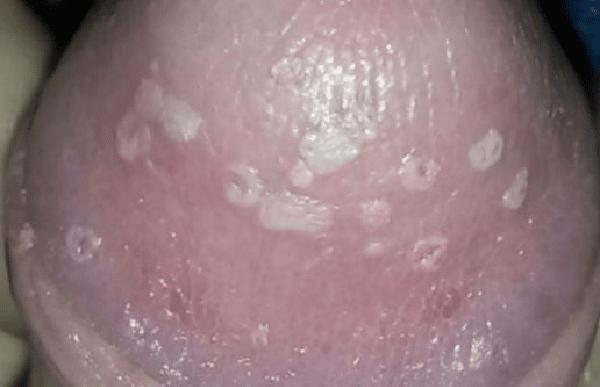 Những dấu hiệu điển hình khi bị nấm bao quy đầu