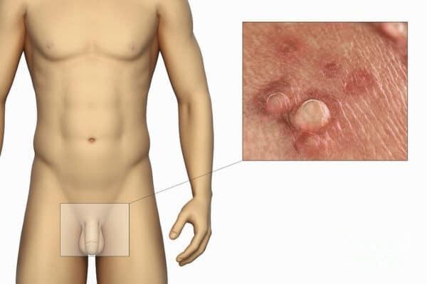 HPV là một trong những nguyên nhân gây sùi mào gà ở bao quy đầu