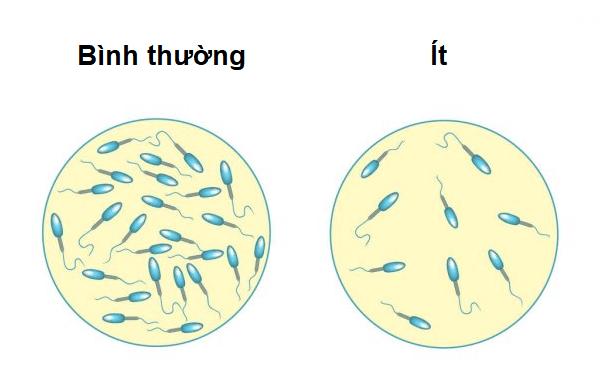Giải đáp thắc mắc tinh dịch loãng có thể thụ thai được không