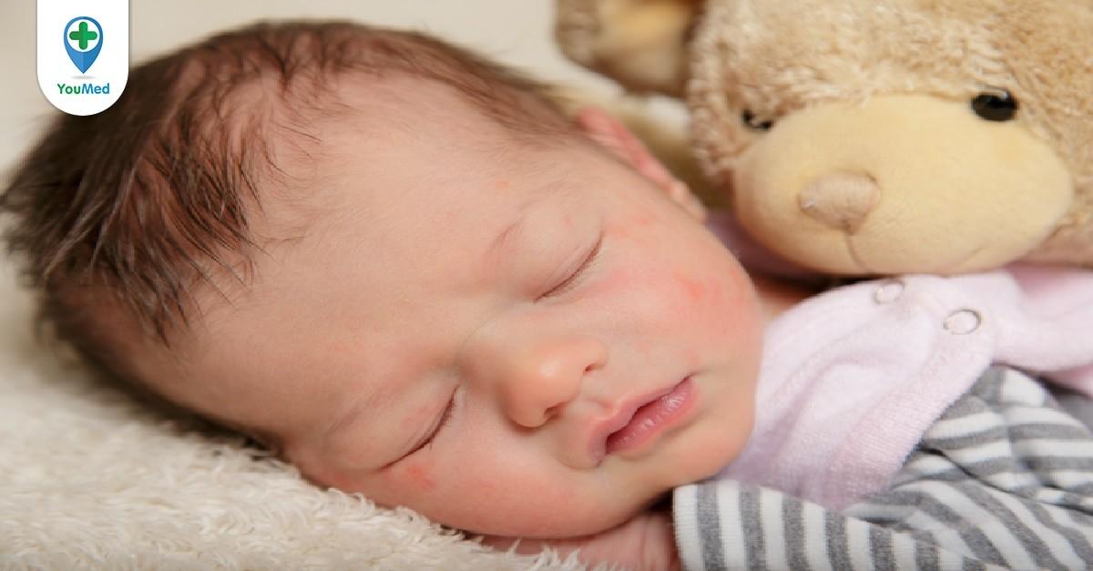 Trẻ đổ mồ hôi đầu khi ngủ
