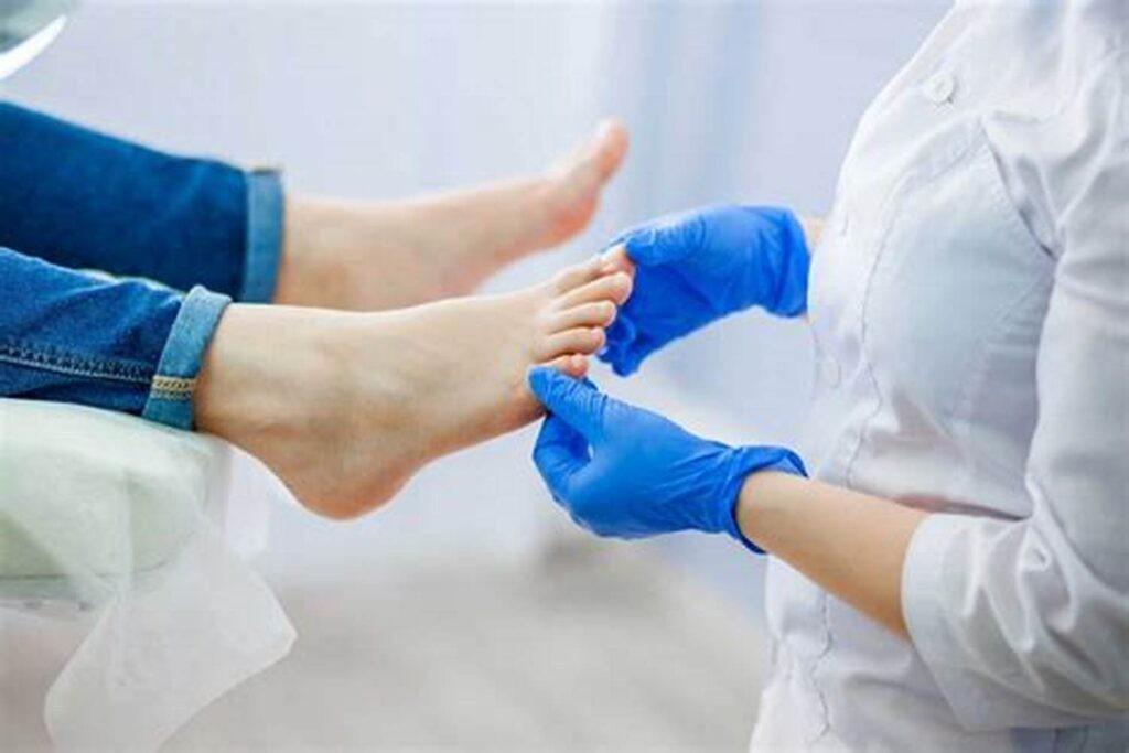 Trị đổ mồ hôi tay chân bằng phương pháp tiêm botox