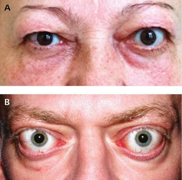 Lồi mắt là một trong những triệu chứng thường gặp