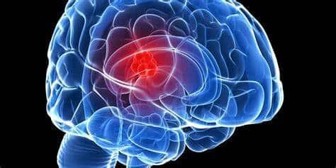Ung thư não sống được bao lâu