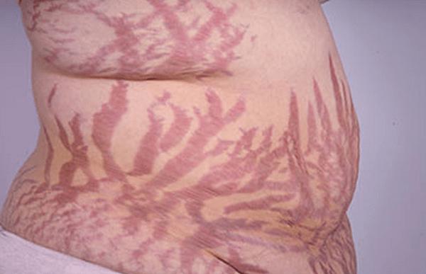 Vết rạn màu tím xuất hiện bất thường trên da có thể là dấu hiệu của hội chứng Cushing