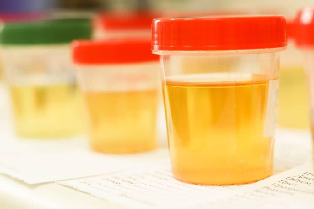 Xét nghiệm nước tiểu là một phương pháp chẩn đoán hội chứng Cushing