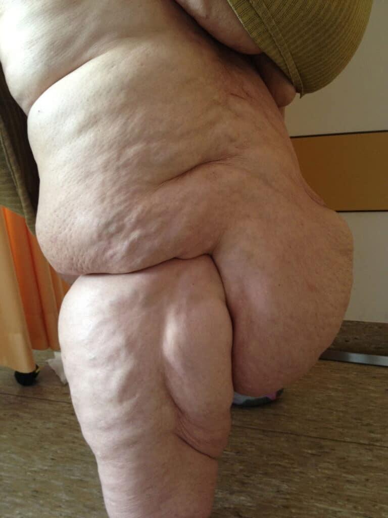 Bệnh phù mỡ gây tích mỡ bất thường trên cơ thể