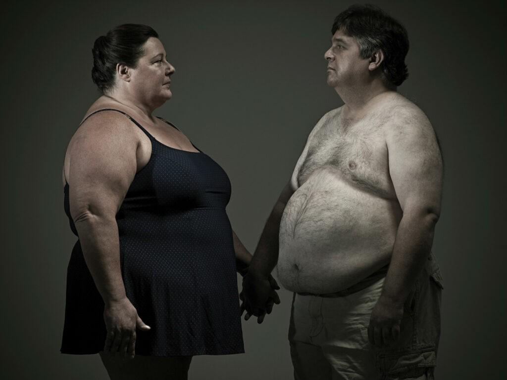 Người bị béo phì là yếu tố nguy cơ cao của bệnh