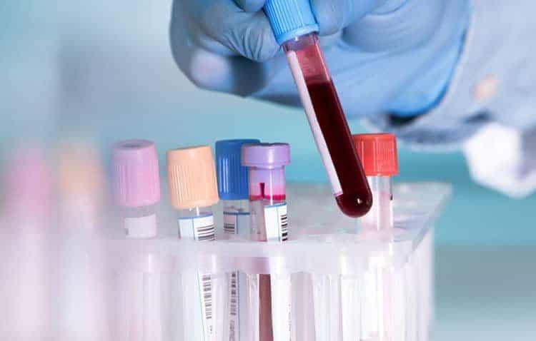 Xét nghiệm máu là một phần quan trọng trong chẩn đoán