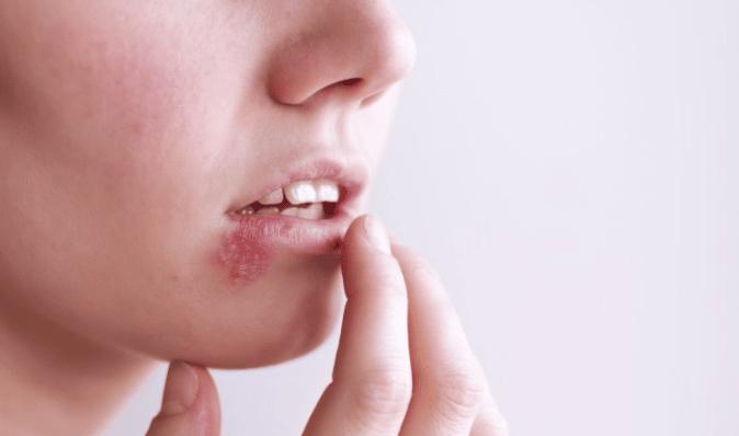 Mụn mọc quanh miệng phản ánh điều gì đối với sức khỏe?