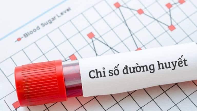 Xét nghiệm đường huyết là xét nghiệm cơ bản để phát hiện bệnh