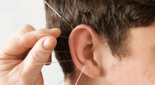 Châm cứu chữa ù tai giúp thông kinh lạc, tăng tuần hoàn máu...